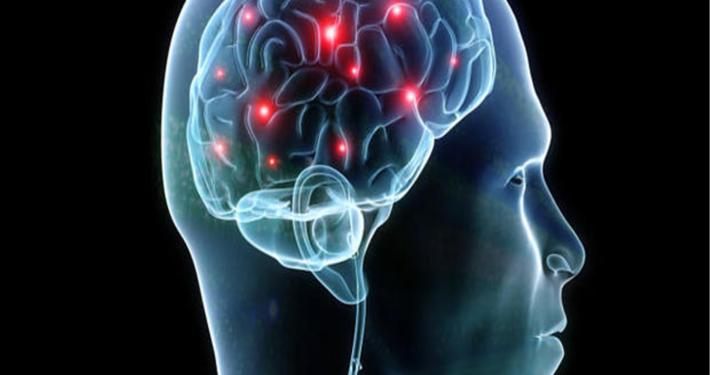 Cosa è il Neuro-Training